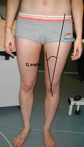 Q-angle marked on the knee