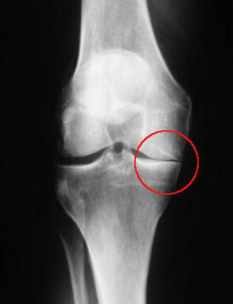Decreased joint space on one side of knee