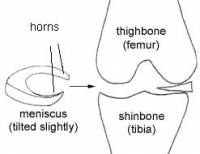 horns of the meniscus