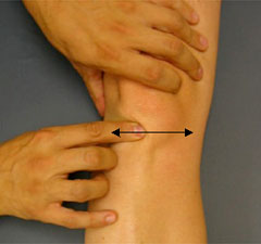 http://www.kneeguru.co.uk/assets/images/Community_Hub/kokmeyer/patellar-tendon_b.jpg