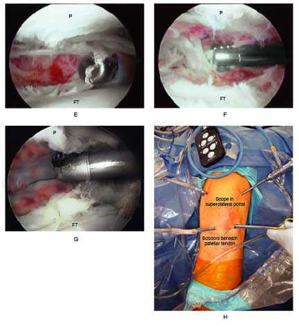 debridement of the knee