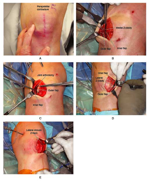 z-plasty of knee