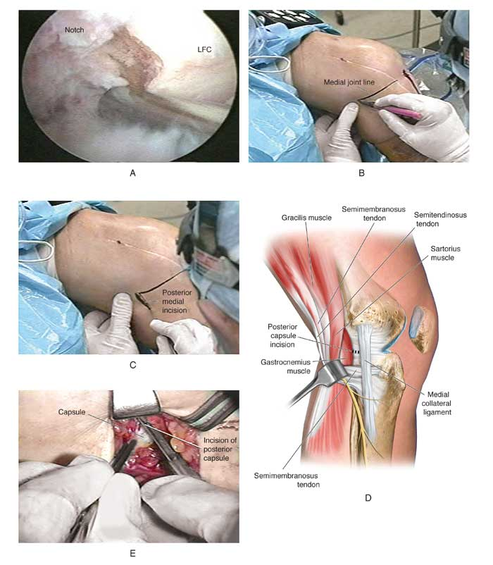 lysis of adhesions of the knee