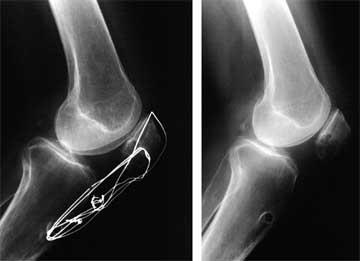z-plasty x-rays