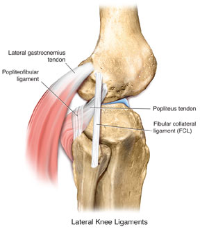 Sports medicine 2 2011 untreated grade posterolateral structure injuries contributed to acl or pcl graft failure by allowing higher forces to stress graft so knees with grade ccuart Choice Image