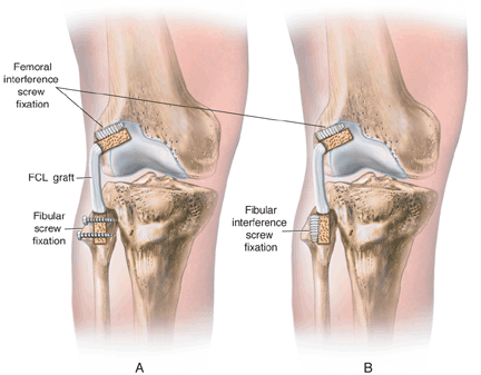 fibular collateral ligament reconstruction