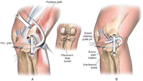 PMTL graft replacement