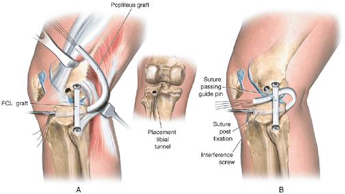 PMTL graft replacement