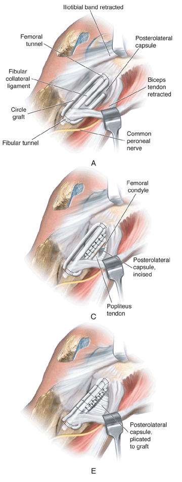 Femoral-fibular reconstruction