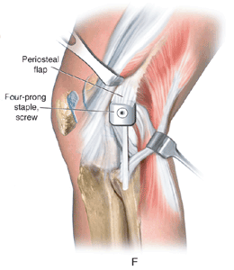 graft fixation