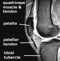 extensor mechanism of knee