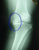 medial compartment collapse