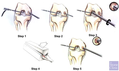 articular paste grafting