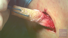 bone patellar-tendon bone allograft