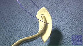 collagen meniscus scaffold