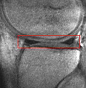 articular cartilage damage knee