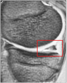 MRI showing tear of posterior horn