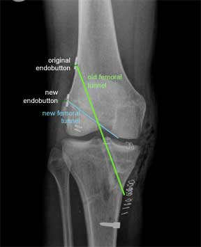 ACL revision