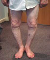 varus knees