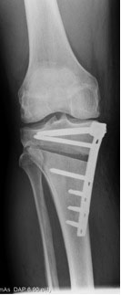 Opening wedge osteotomy