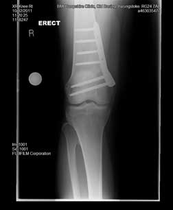 varus knees