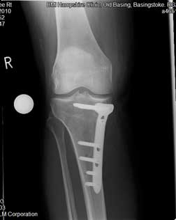 twelve weeks after osteotomy