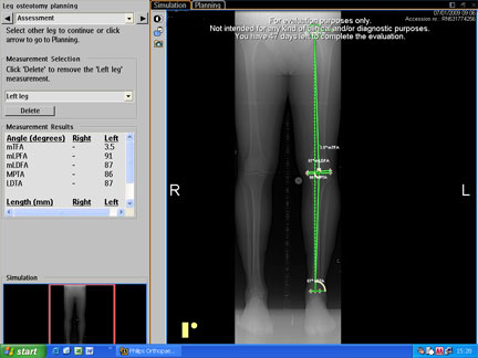 x-rays for high tibial osteotomy