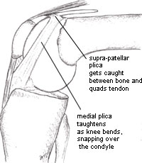 Image of a bent knee to show how the plicae taughten