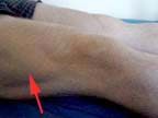 photo of vastus lateralis