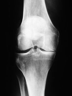 medial joint line thinning in osteoarthritis of the knee