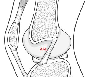 ACL - knee cut in half