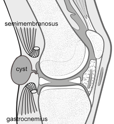 mechanism of baker's cyst