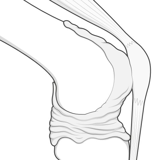 capsule of the knee - deflated