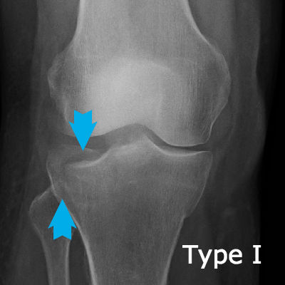 Type I tibial plateau fracture
