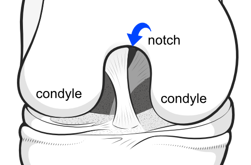 condyles and notch of the femur