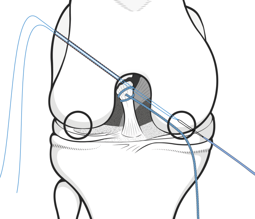 cruciate repair procedure