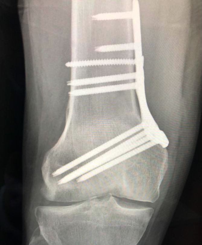 distal femoral osteotomy for osteochondral defect