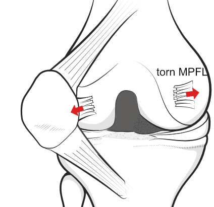 dislocation of the patella with torn MPFL