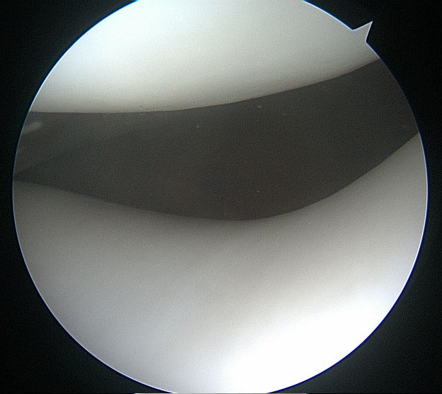 photo taken through the arthroscpe
