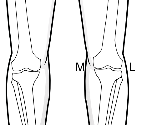 medial joint space narrowing on both sides