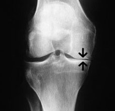 joint space narrowing in the knee
