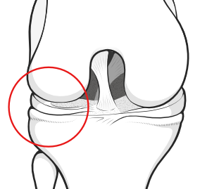 lateral compartment of the knee