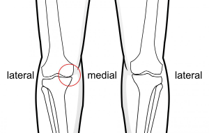 medial joint line thinning of the knee