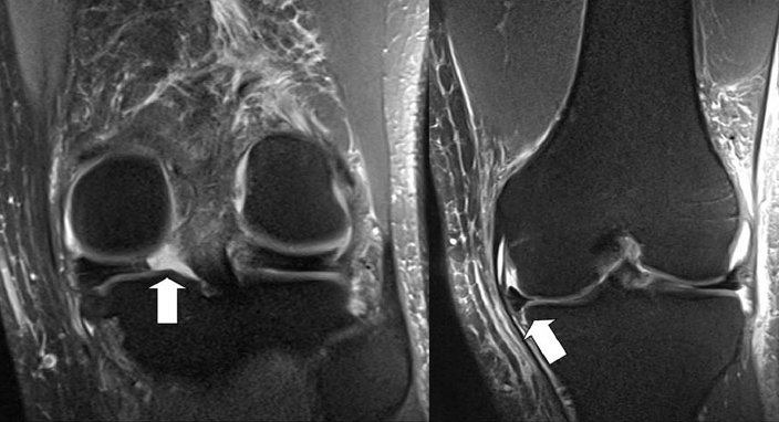 meniscus root tear with extrustion