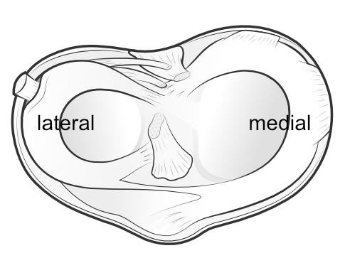 the shape of the medial and lateral menisci