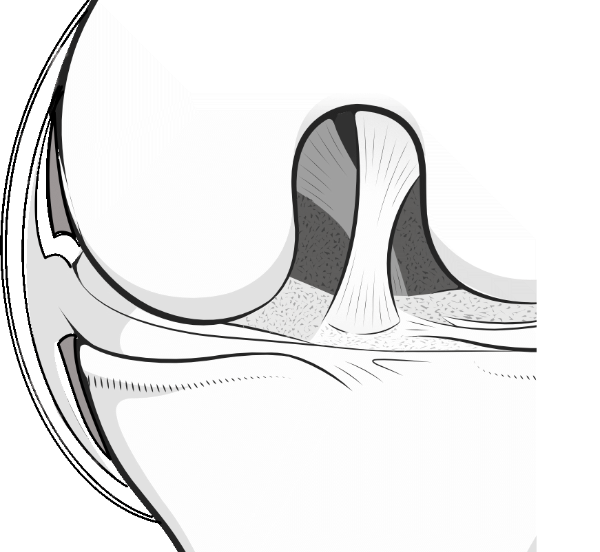 knee meniscus showing the menisco-capsular junction