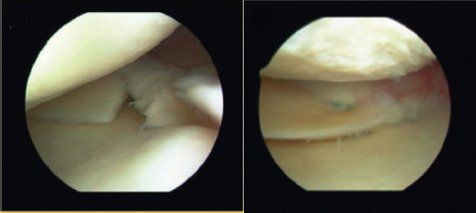 meniscus root tear before and after fixation