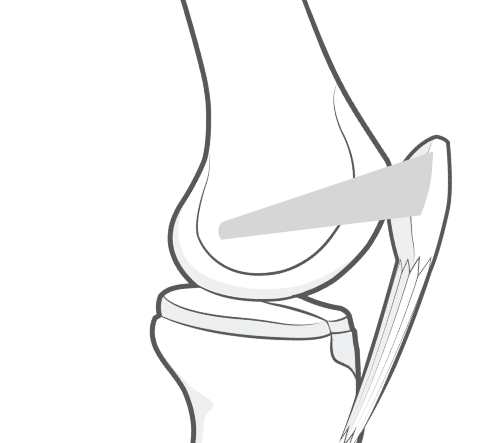 medial patellofemoral ligament or MPFL