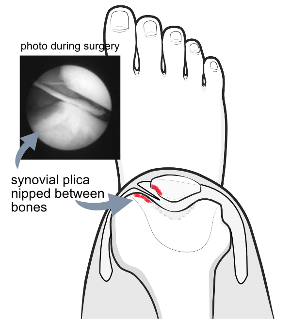medial plica being nipped between knee bones
