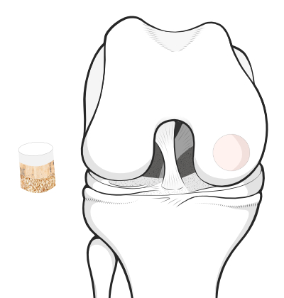 osteochondral graft plug ready to be pushed into the prepared recipient site